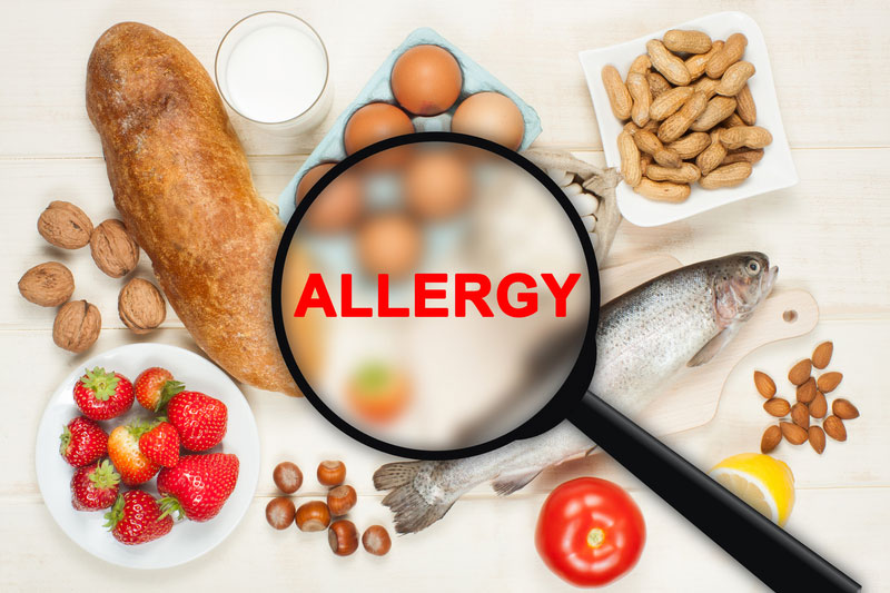 Humble, Texas 77338 food allergies and sensitivity treatment